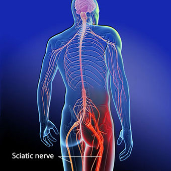 drawing of the sciatic nerve